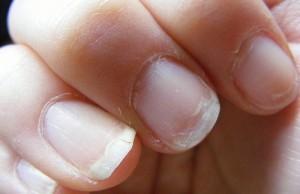 come curare le unghie sfaldate